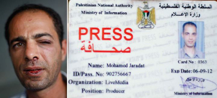 Image shows photo of Mohamed Jaradat with bloodied lip and black eye next to his Palestinian Authority press card