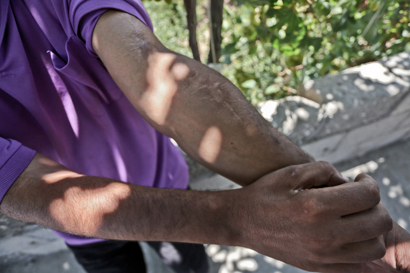 Close-up of scars on young man's arm