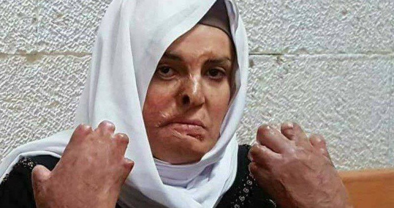 Why won't Israel treat imprisoned woman with severe burns?