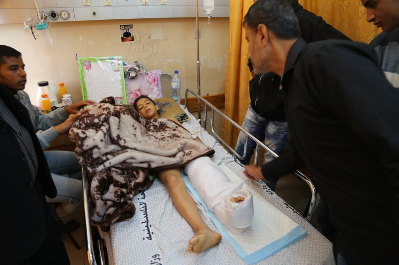 Young boy lies in hospital bed with one of his legs wrapped in a cast