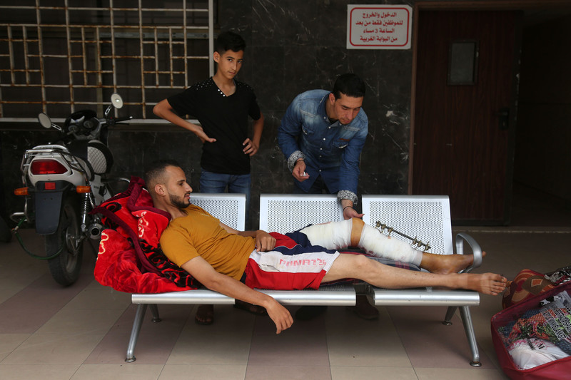 Young man with a metal splint on his legs lies across a bench as two other youths look on