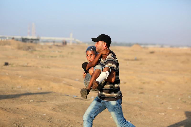 180706-wounded-gaza-child.jpg?itok=Ci9iV