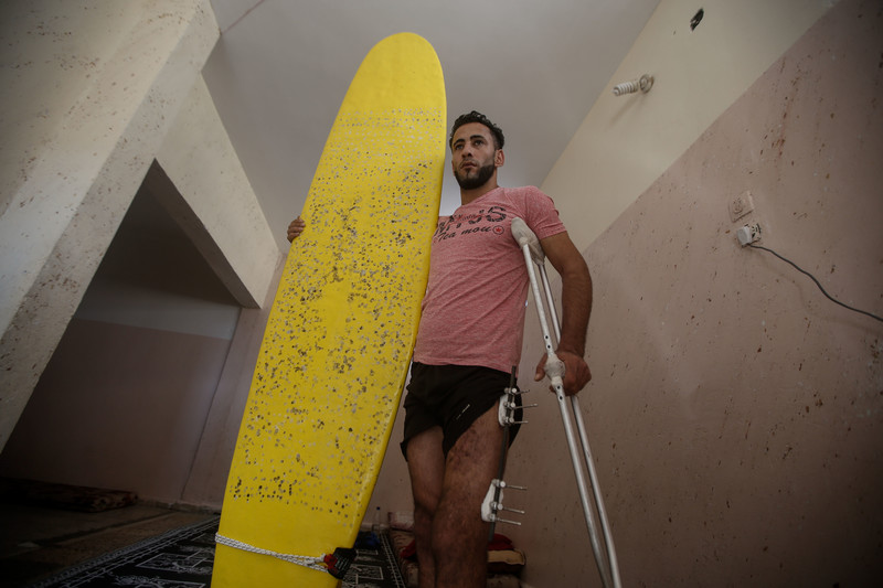 Man wearing t-shirt and shorts holds a surfboard with one arm and supports himself with crutches using his other arm