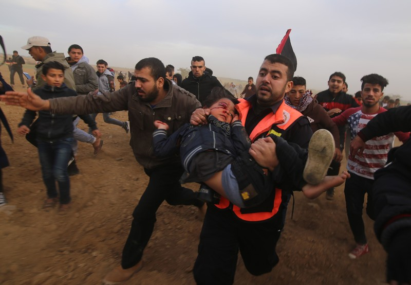 A paramedic carries a small child with blood splattered around his eye as others run alongside them