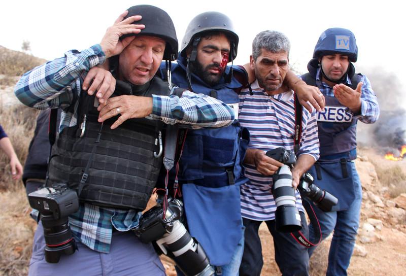 Palestinian journalist loses eye to Israeli bullet