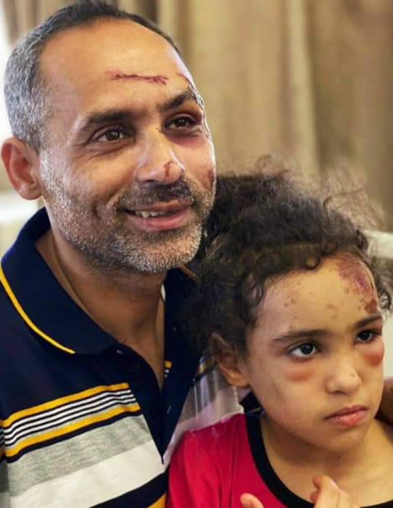 A man holds a girl, both with wounds and scars on their faces