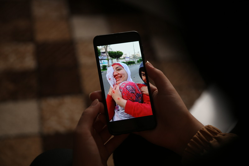 A picture of a picture on a mobile phone of a woman with blood on her face