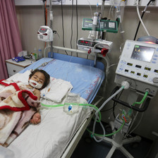 A toddler lies on a hospital bed hooked up to several medical machines and an IV drip.