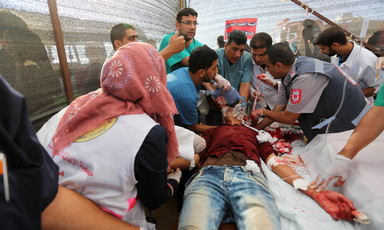 Medics surround a bloodied young man lying on a stretcher